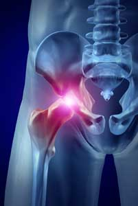 hip replacement surgery pain