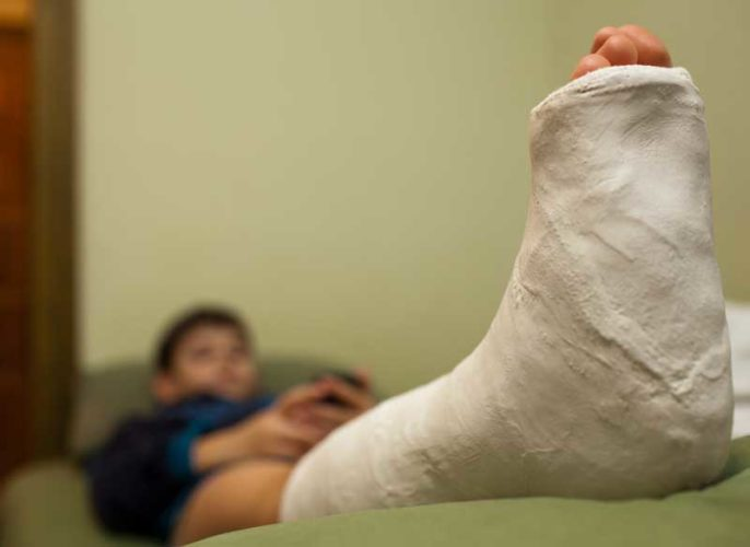 casts needs to be kept dry in shower or bath